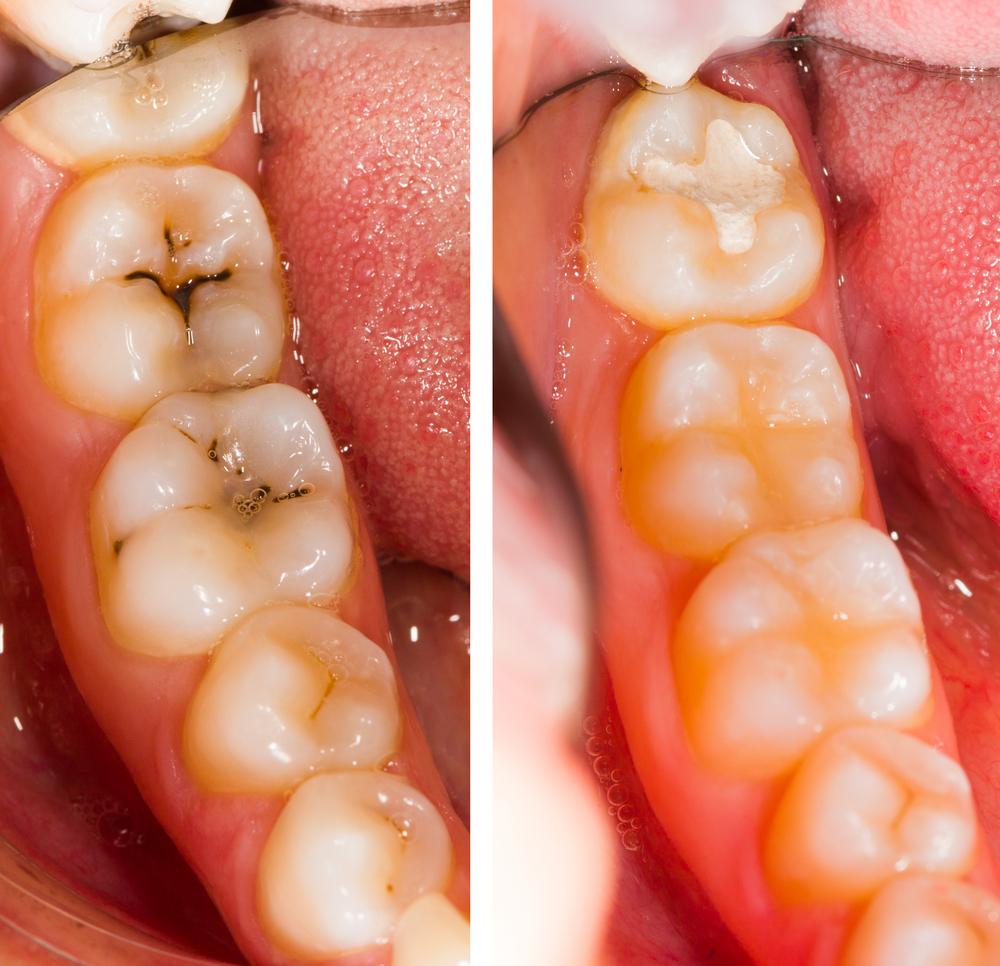 """Οι εμφράξεις επιλέγονται στις περισσότερες περιπτώσεις λόγω τερηδόνας ή  καταγμάτων των δοντιών. Η τερηδόνα είναι η """"σιωπηλή"""" νόσος των δοντιών που  οφείλεται ... 853a5b3e95a"""